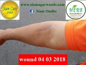 woundsiamcare040318 3001